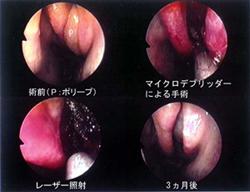 鼻茸なら 高崎の清水耳鼻咽喉科 ...